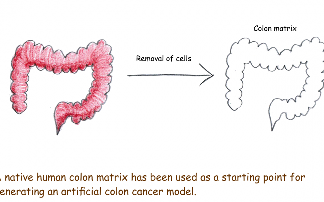 An artificial colon