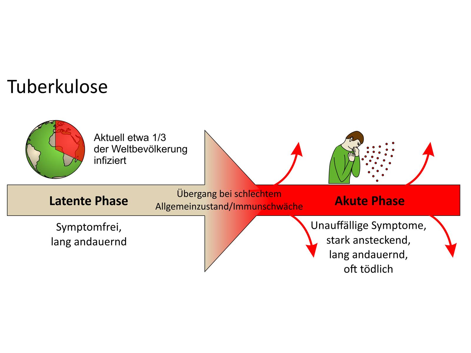 Infografik Tuberkulose