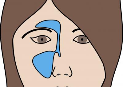 Air sinus